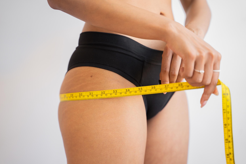 Celulitida – co je příčinou vzniku a jak se jí dokážete zbavit