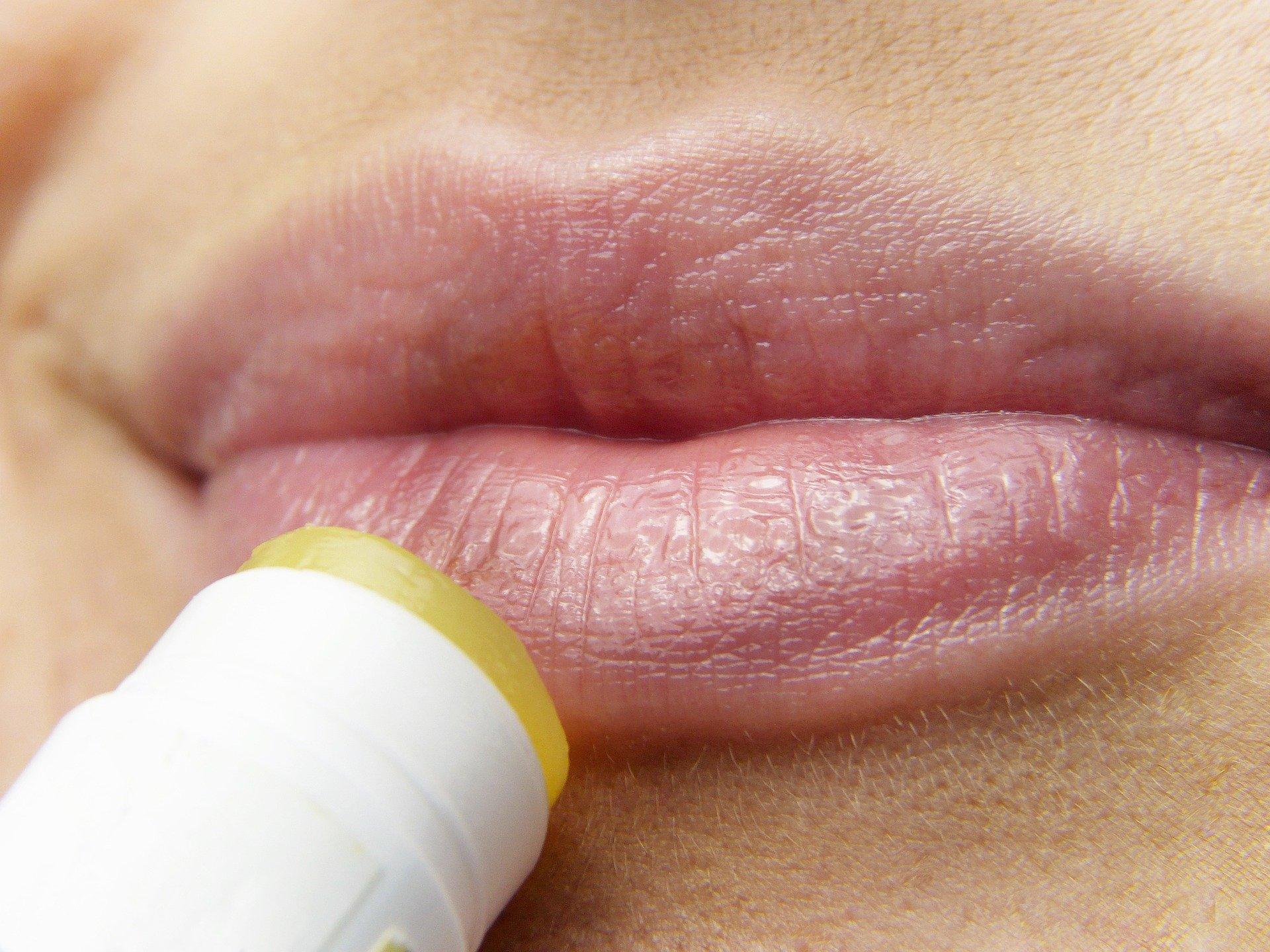 Lysin – ke snížení cholesterolu, proti oparům a únavě