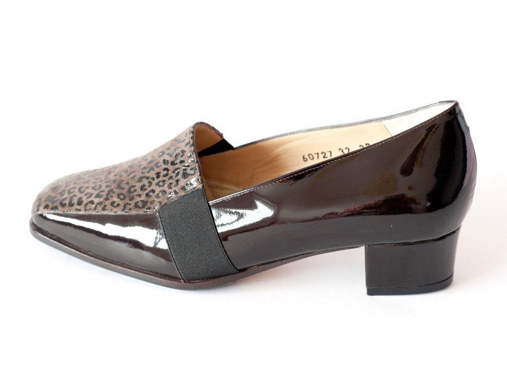 Zdravotní obuv LOREN 60727 (2016)