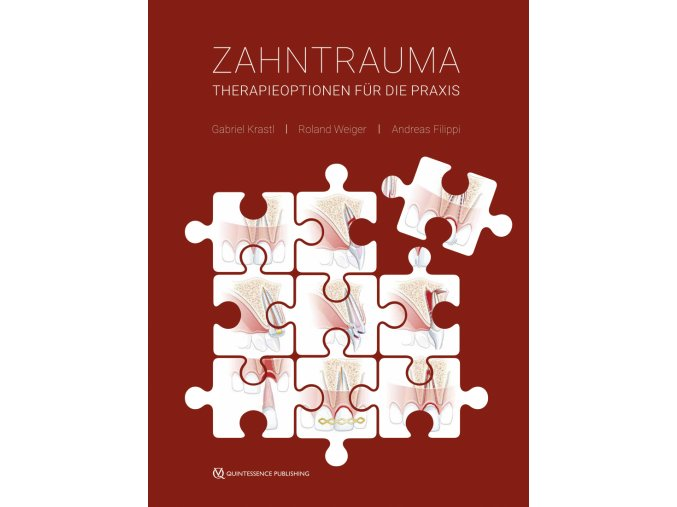 17280 Cover Krastl Weiger Filippi Zahntrauma