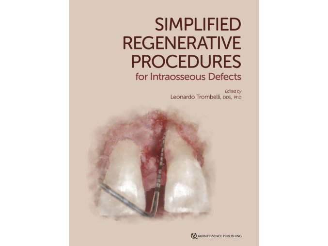 22941 Cover Trombelli Simplified Regenerative Procedures for Intraosseous Defects