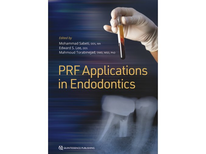 22091 Cover Sabeti PRF Applications in Endodontics
