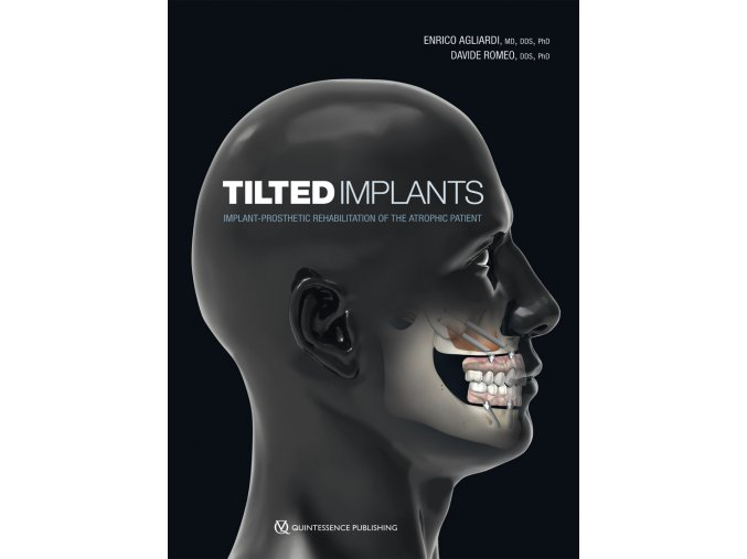 22841 Cover Agliardi Tilted Implants