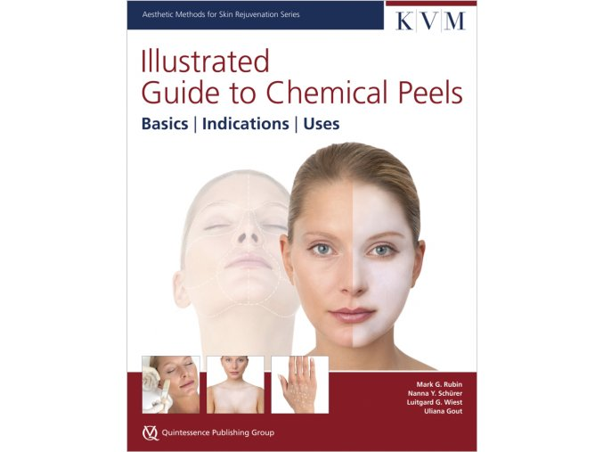 30133 Rubin IG Chemical Peels