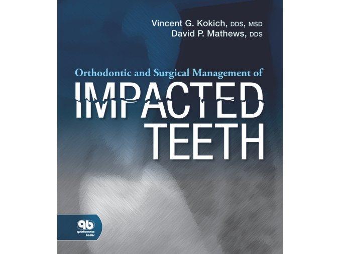 16121 cover kokich impacted teeth