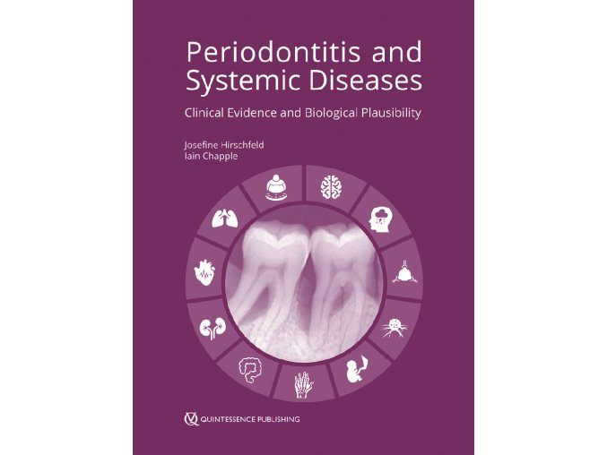 22111 cover hirschfeld periodontitis systemic diseases