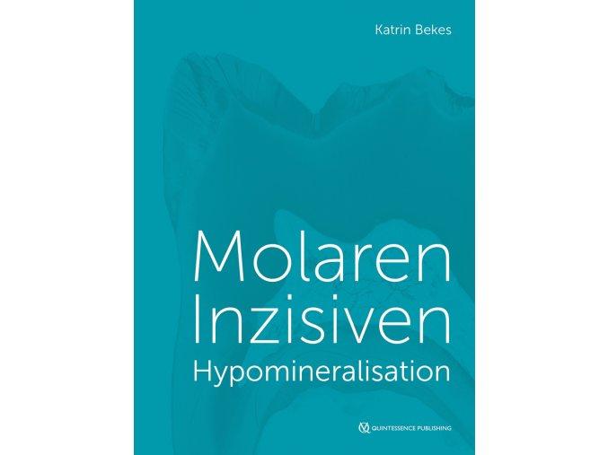 22730 cover bekes molaren inzisiven hypomineralisation