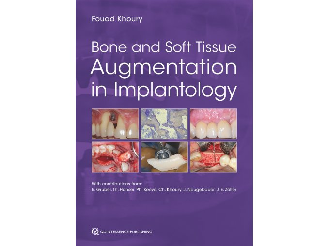 14891 cover khoury bone and soft tissue augmentation in implantology