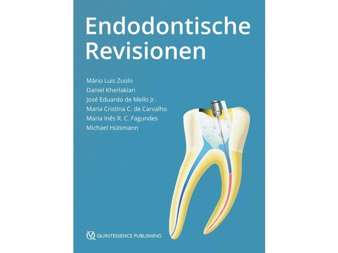 15780 Cover Zuolo Endodontische Revisionen