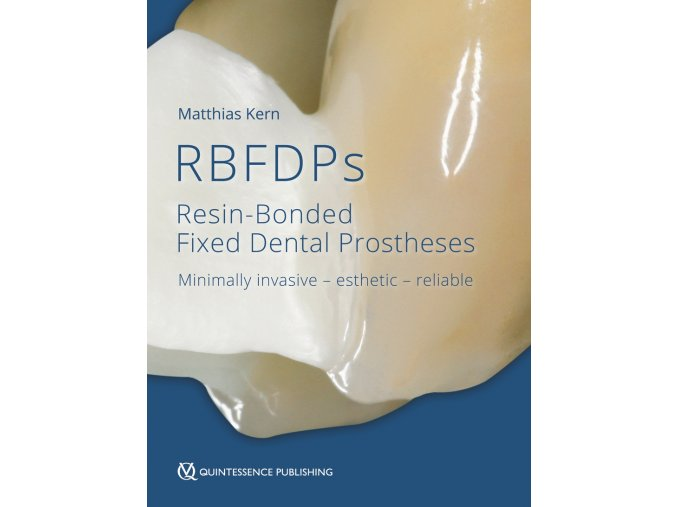 20611 Cover Kern RBFDPs Resin Bonded Fixed Dental Prostheses