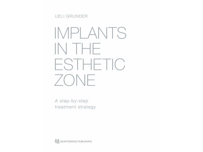 Implants in the Esthetic Zone