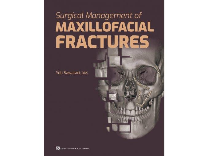 21941 Sawatari Management Maxillofacial Fractures