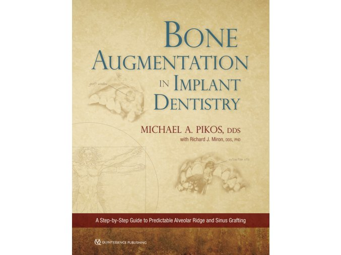 Cover 22081 Pikos Bone Augmentation in Implant Dentistry