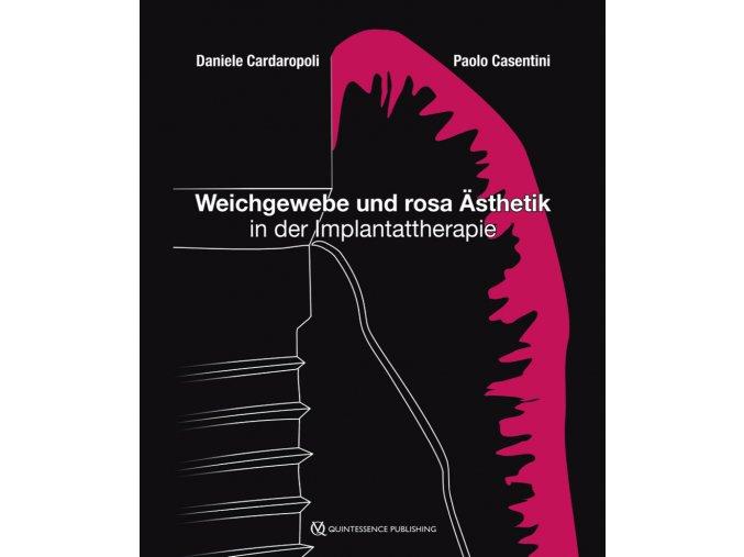 21880 Cover Cardaropoli Casentini Weichgewebe und rosa Asthetik in der Implantattherapie