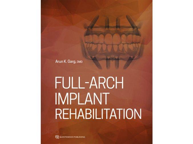 Full-Arch Implant Rehabilitation