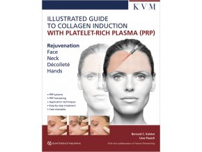 30253 Cover Illustrated Guide to Collagen Induction with PRP
