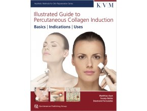 30134 Cover IG Percutaneous Collagen Induction