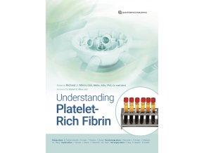 23621 cover miron understanding plateletrich fibrin