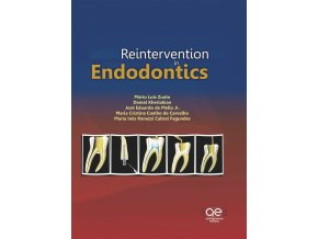 Reintervention in Endodontics