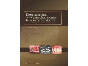Komplikationen in der zahnärztlichen Implantatchirurgie