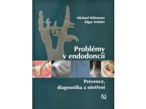 Problémy v endodoncii