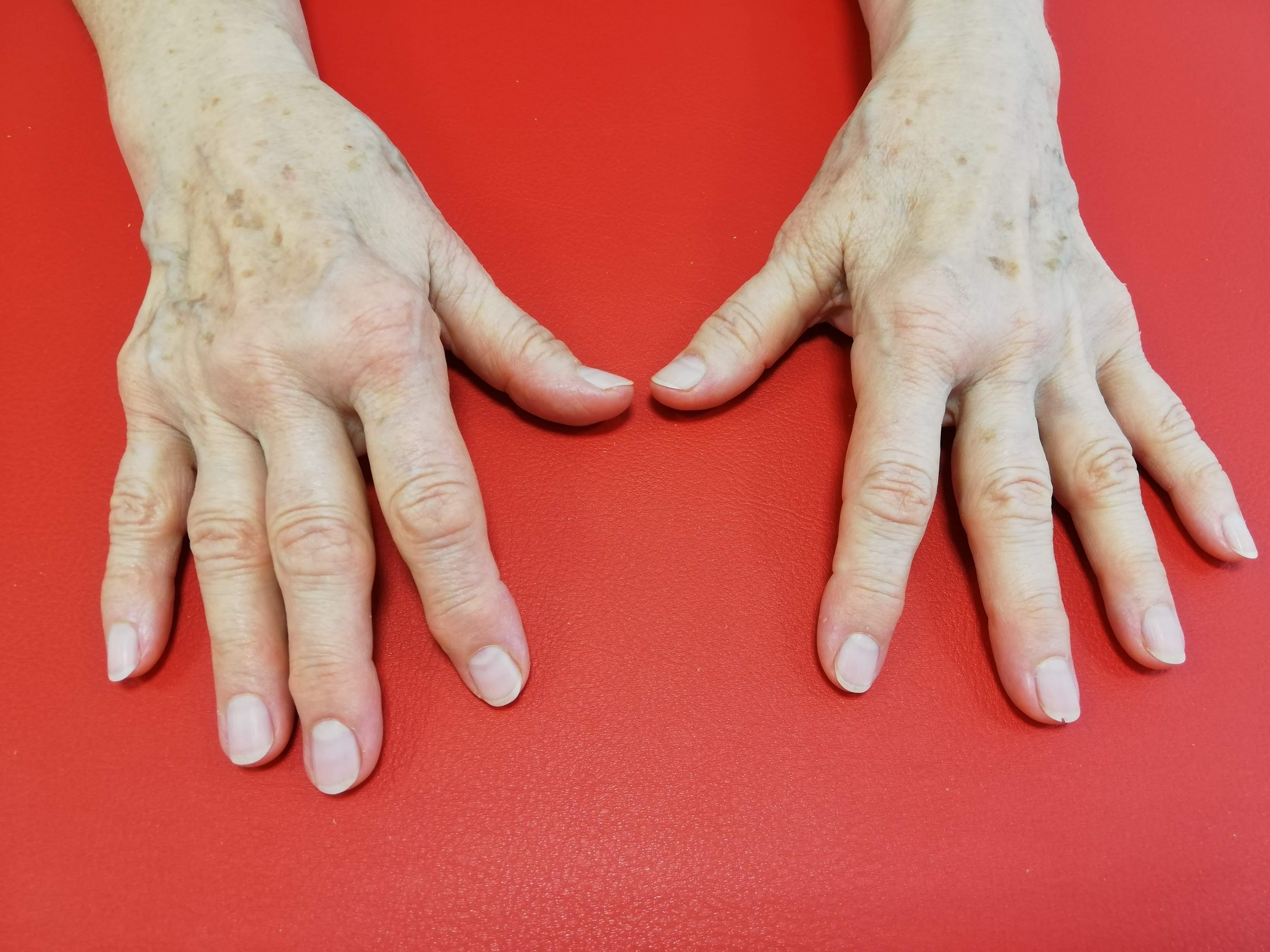 Osteoartróza horných končatín