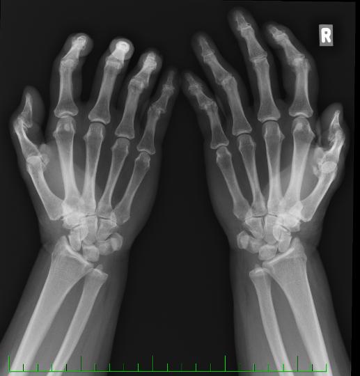 erozívna osteoartróza