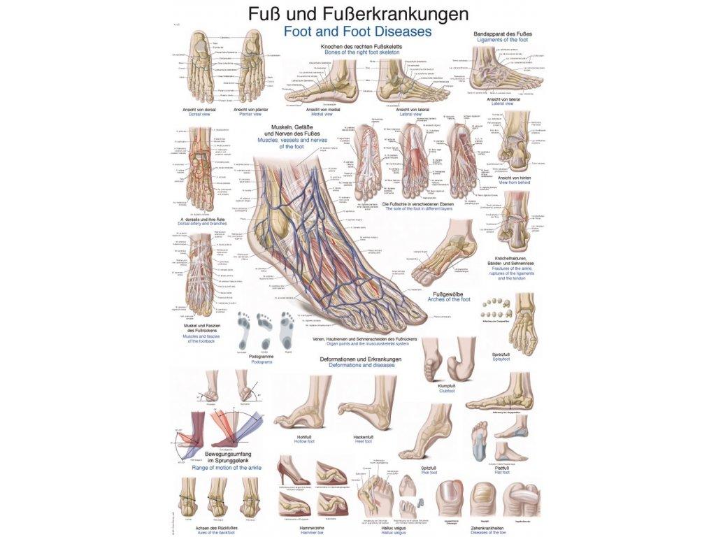 Plakát - onemocnění nohou a chodidel 70x100 cm