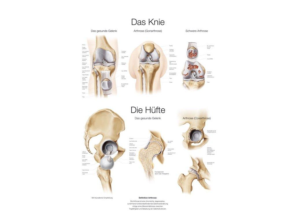 Plakát - koleno - kyčel 70x100 cm