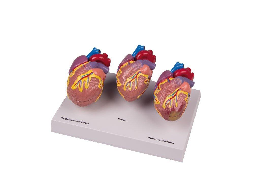 Model onemocnění srdce