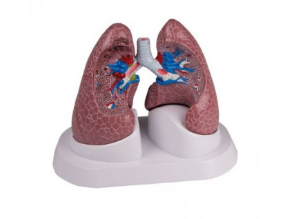 Plíce - patologické změny
