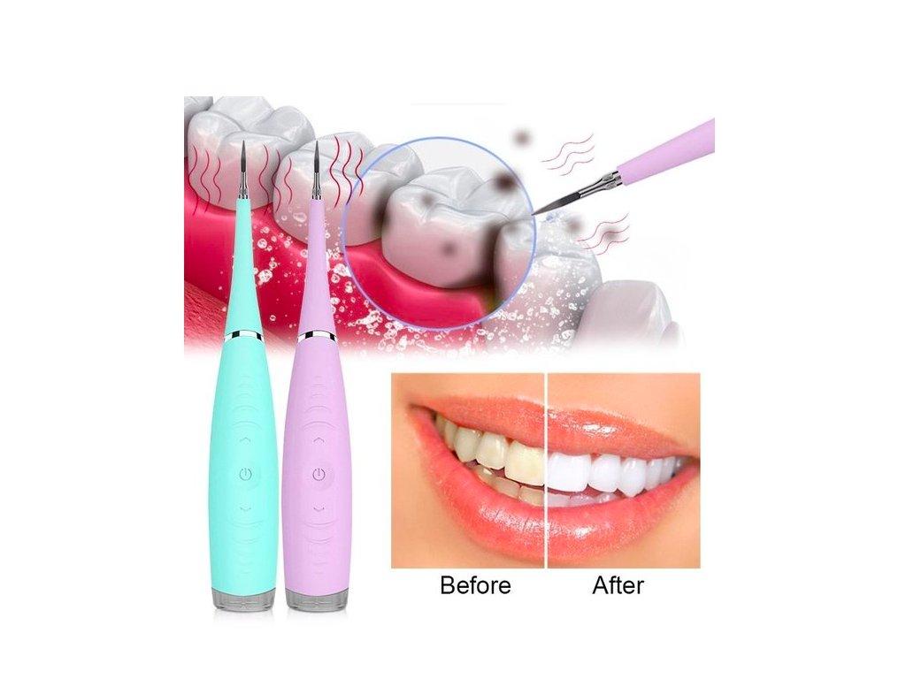 Ultrazvukový čistič zubů