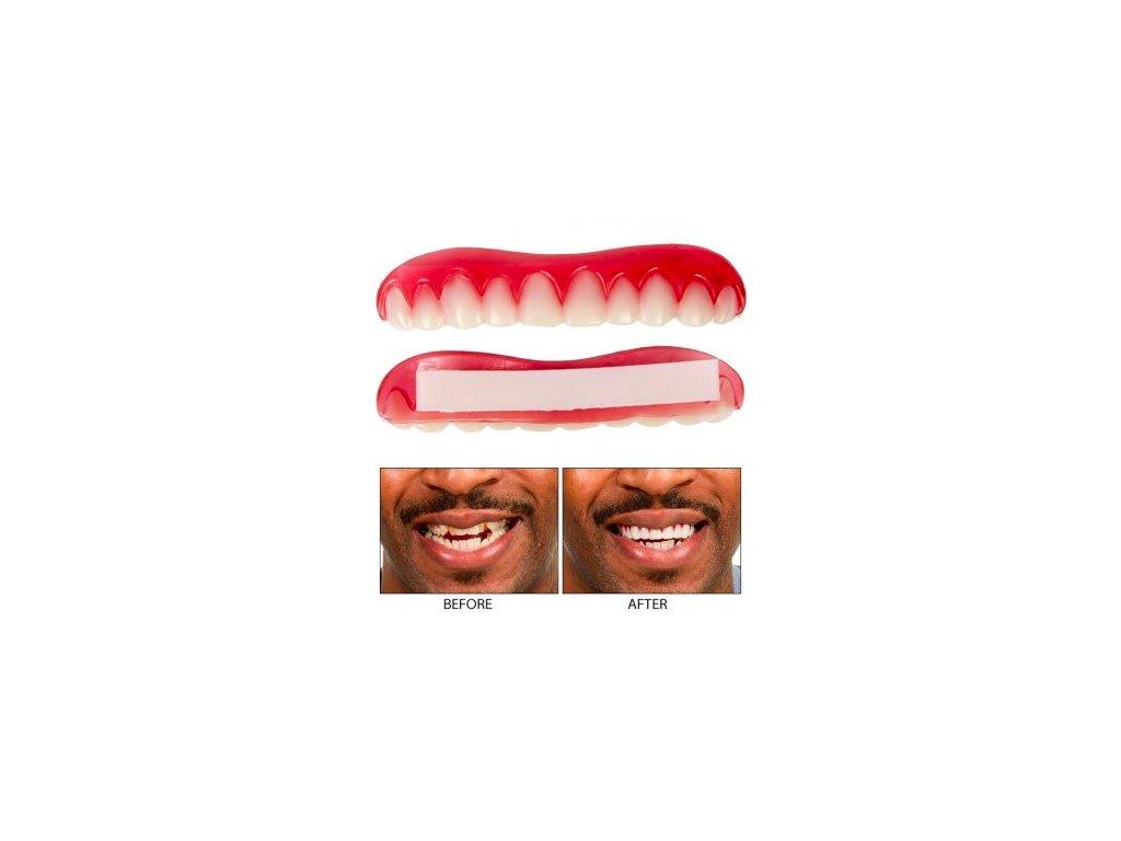 Silikonová horní zubní protéza
