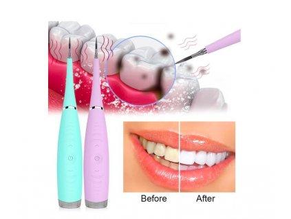 Electric cleaner - Čistič zubů