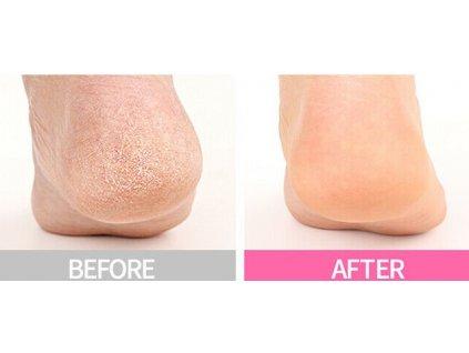 Victoria Beauty Pedikúra Samoslupovací zábal na nohy se šnečím extraktem, 1 pár ponožek, 2ks