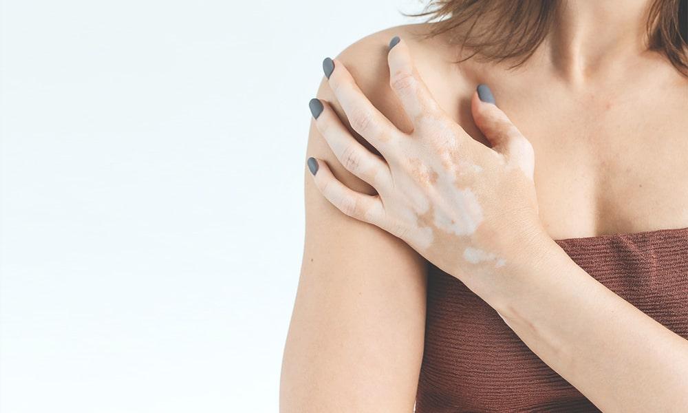 Vitiligo: Vše o nemoci kůže a jak ji překrýt