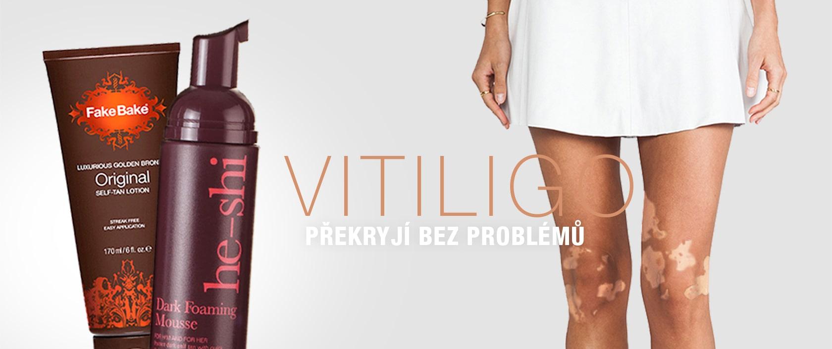 Samoopalovacisvět - Produkty na VITILIGO