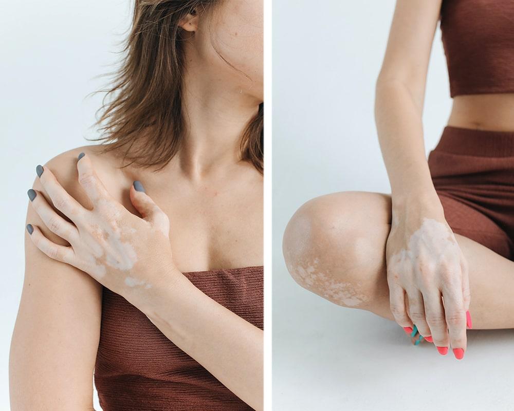 vitiligo-jak-ho-prekryt-1-min