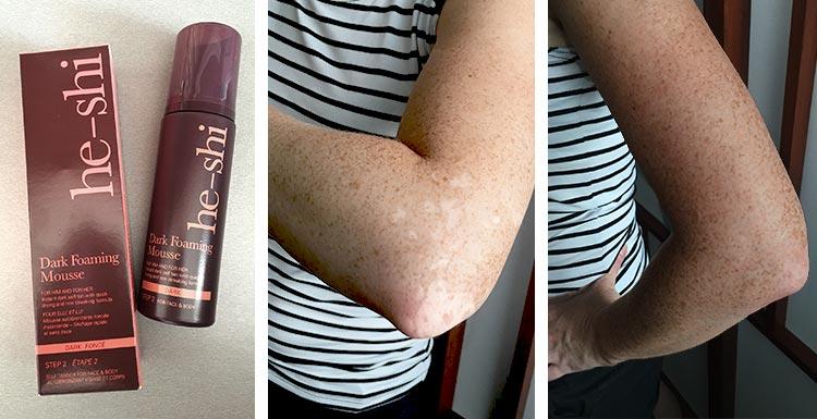 vitiligo-obrazky-clanok-he-shi