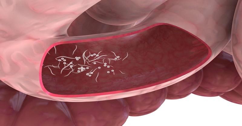 Parazit ve strevech, Giardiaza Giardia - Parazit ve strevech