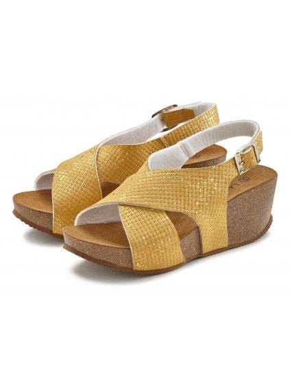 LASCANA sandály na klínku (BARVA ŽLUTÁ, VELIKOST 40)
