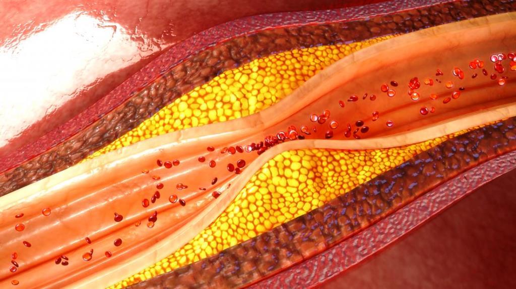 Ateroskleróza a arterioskleróza