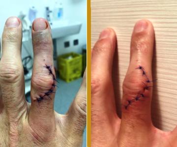 Chirurgický zákrok na prstu | Regenerační gel
