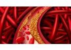 Problémy s cholesterolem