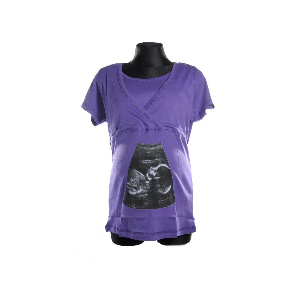 Tehotenské tričko s krátkym rukávom - ultrazvuk (Farba Biela, Veľkosť M)