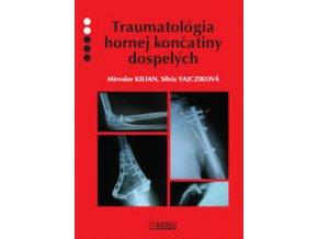 Traumatológia hornej končatiny u dospelých