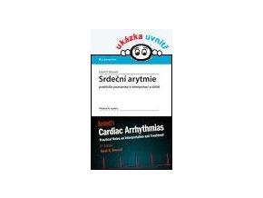 Srdeční arytmie - praktické poznámky k interpretaci a léčbě