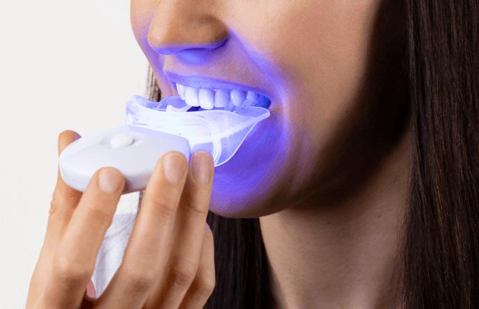 Bělení zubů - svítivost