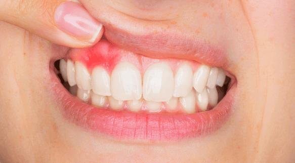 beleni-citlivych-zubu-5
