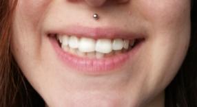 Bělení zubů - po